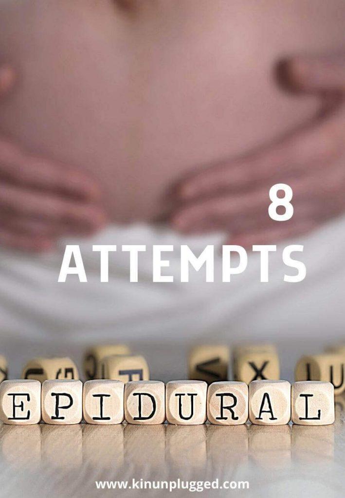 epidural attempt